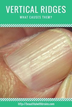 8 Simple Ways to Banish Dry, Brittle Nails for Good | Vertical ridges on  fingernails, Vertical nail ridges, Nail ridges