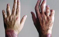 arthritis psoriatica sintomas izületi gyulladás a kéz ujjain
