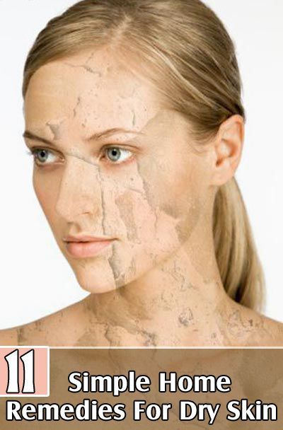 Home Remedies For Dry Skin Cucumber Is Extremely Beneficial For