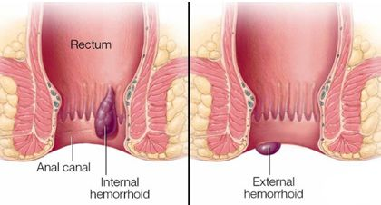 علاج الشق الشرجي Drantonio Ae Cure For Hemorrhoids Hemorrhoids Hemmoroids Treatment