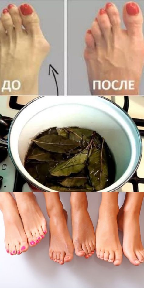 detoxifiere cu vene varicoase)