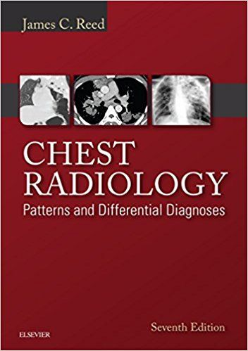 Chest Radiology A Residents Manual Pdf