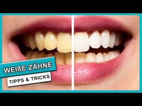 Weiße Zähne in 5 Minuten   Gelbe Zähne aufhellen mit