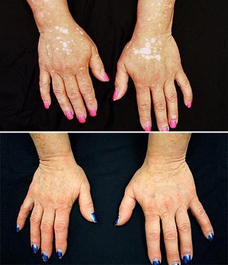 Has Yale University finally found a cure for vitiligo? - Telegraph