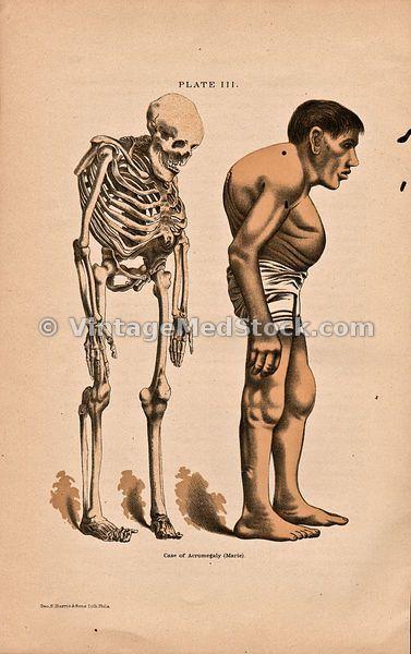 Keywords:antique, backbone, bone, bones, clavicle, color, Copyright, Copyright 1893, cranium, femur, fibula, full body, humerus, illustration, illustrations, maxillary, medical, medicine, organ system, organ systems, orthopedics, pelvis, photography, rib, ribs, sepia, skeletal system, skeleton, skull, spine, thorax, tibia, vertebrae