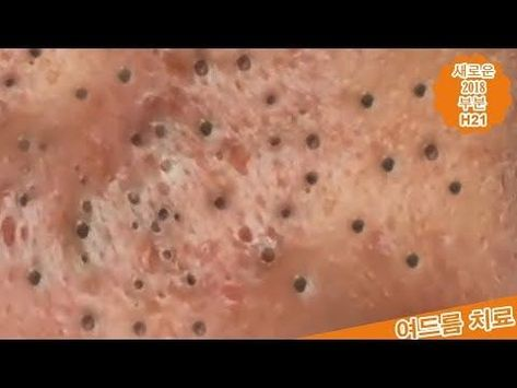 Full HD , A good Blackhead removal of Americans 2019, by #My