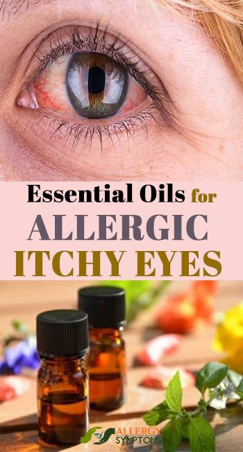 Essential Oils For Allergic Itchy Eyes Itchy Eyes Itchy Eyes