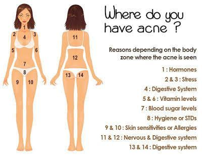 This Body Chart Explains Why Your Acne Keeps Coming Back
