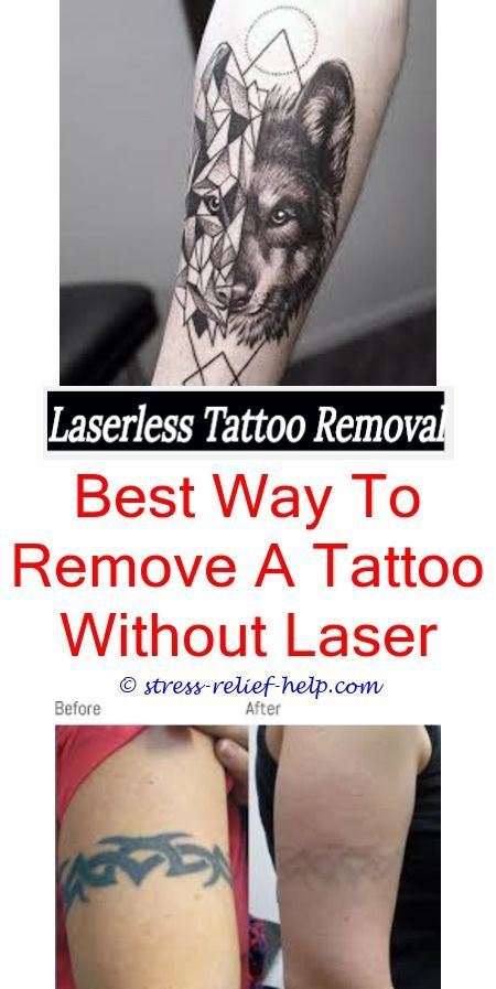 How To Remove Permanent Tattoo At Home In Hindi