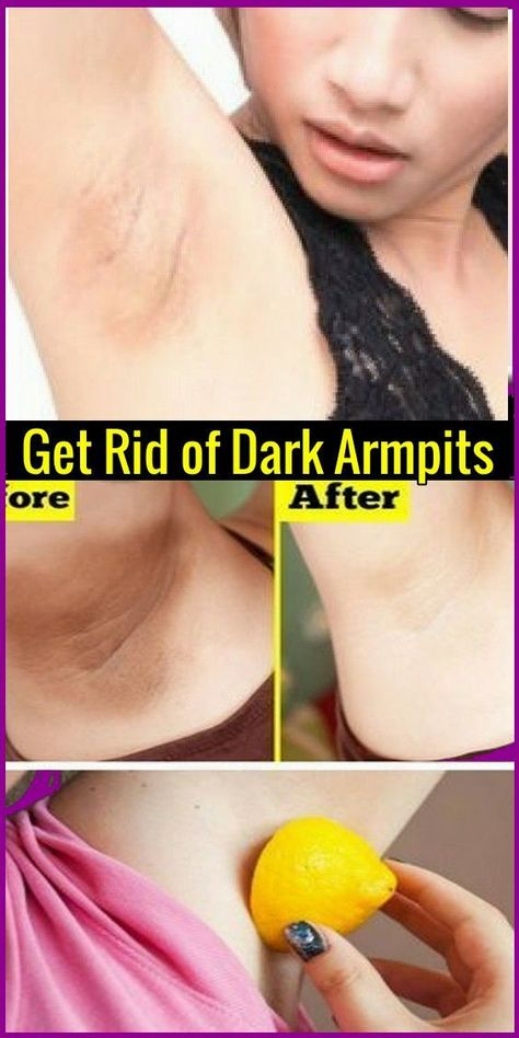 Take Care Of Your Skin With These Simple Steps How To Whiten Underarms Whiten Underarms Fast Dark Armpits