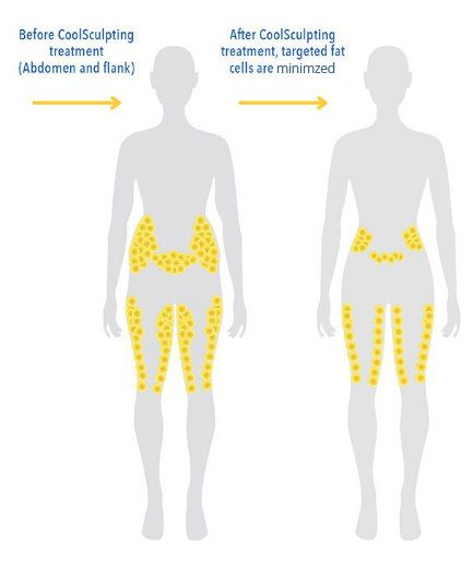 How to lose fat in lower abdomen image 1