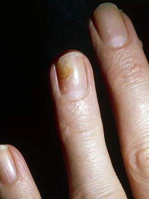 Nail Fungus And Yellow Nails Toenail Fungus Remedies Nail Fungus Cure Toenail Fungus Cure