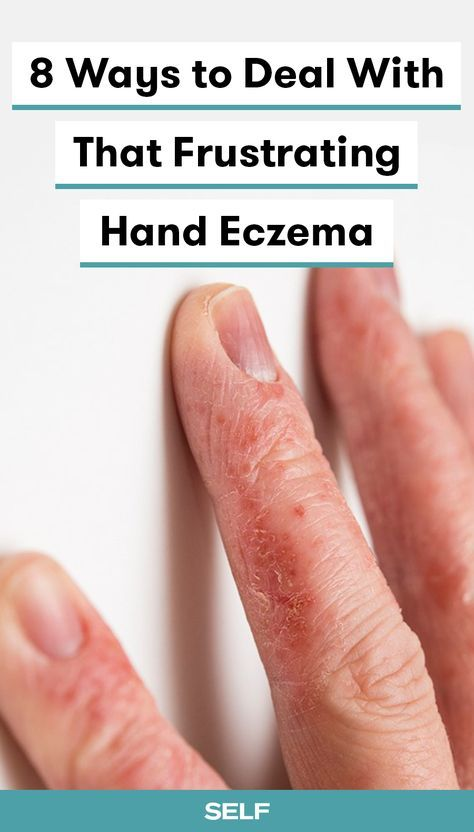 8 Ways To Deal With That Frustrating Hand Eczema Eczema
