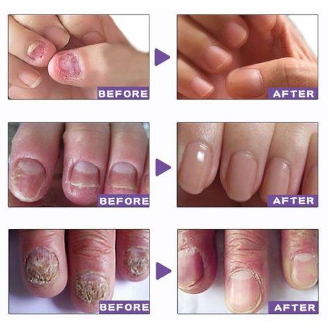 Nail Treatment ,Infection Removal – Alibez.com