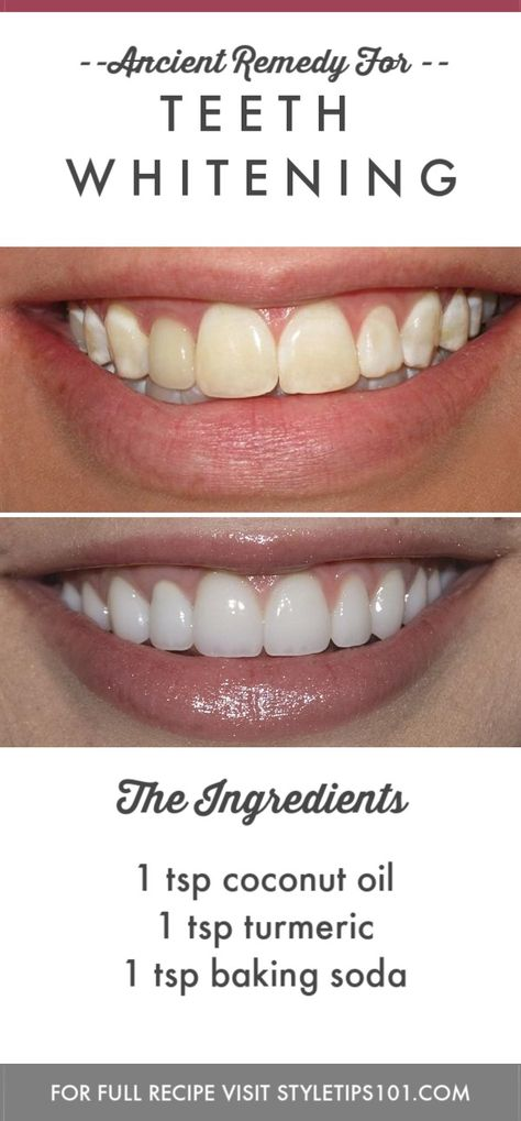 Ancient Remedy for Modern Day Teeth Whitening