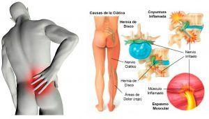 6 Tratamientos Naturales Para El Dolor De Ciática Exercise Healthy Body Ball Exercises