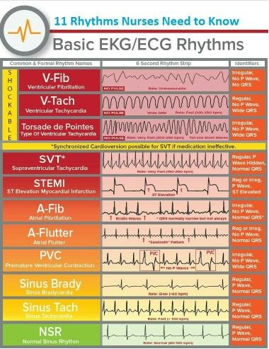 image relating to Printable Ekg Strips identify EKG Rhythms Nursing Cardiac nursing, Professional medical istant