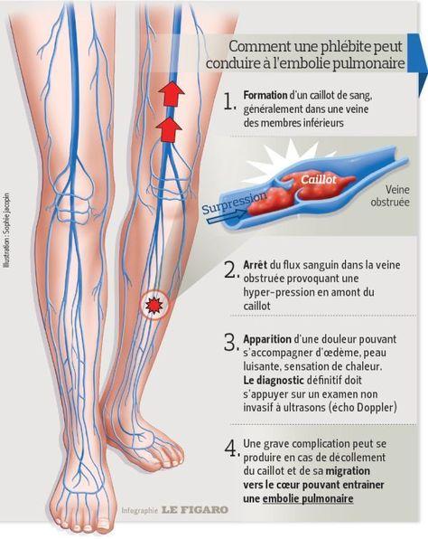 Caillot de sang au coeur síntomas de diabetes