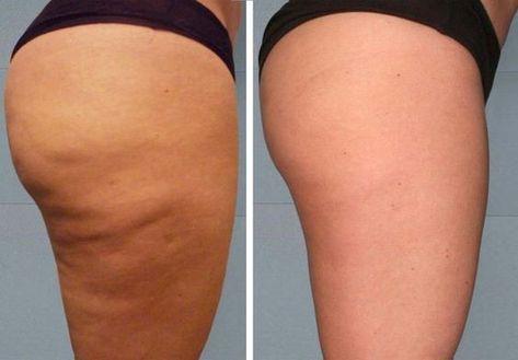 regime anti cellulite