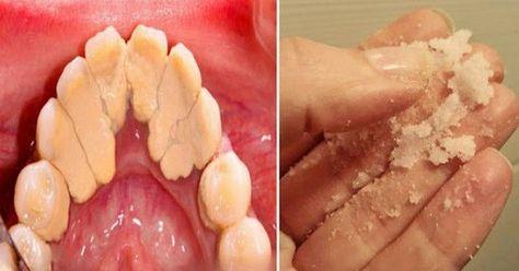 picioarele dinte de la varicoză