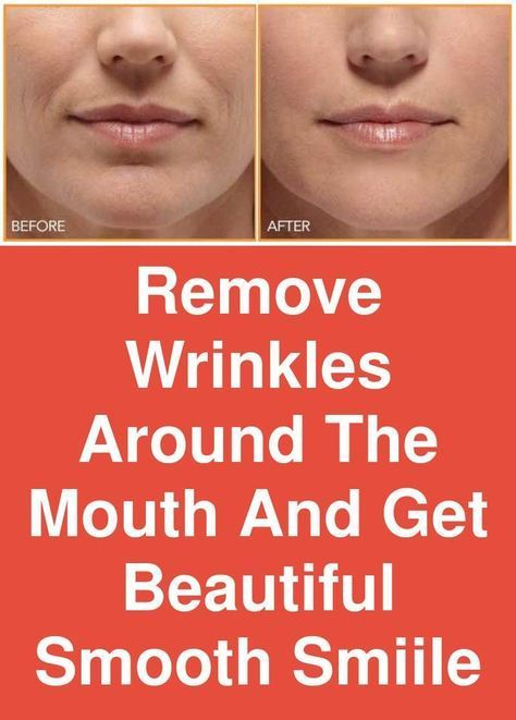 Pin On Anti Aging Skin Care Tips Remedies For Wrinkles