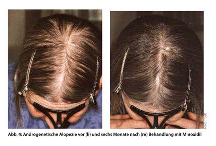 Frisuren Frauen Lichtes Haar Haarausfall Frauen Frisuren Bei Haarausfall Haare