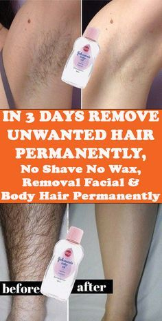 Today I will share an amazing unwanted hair removal treatment with which you can remove facial and body hair permanently. This method is easy, effective and natural.