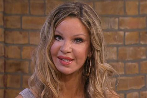 'I had a lettuce leaf for breakfast' - Alicia Douvall opens up about her eating disorder