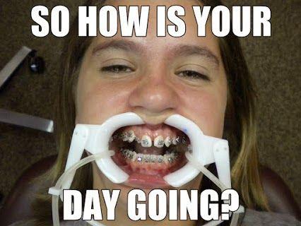 9fa102512b21a9db984b4203266b06f9 82 best braces!!! images on pinterest braces humor, orthodontics