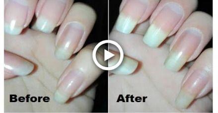Diy Nail Hardener Tutorial How To Make Your Own Nail Strengthener Nail 101 Rose Pearl Diy Nails Nail Hardener Nail Strengthener