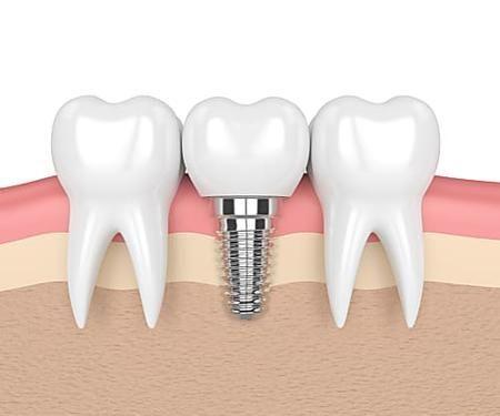 Dusty Dental Implants Technology Toothbrush Dentalbridge Dental Implants Prices Tooth Implant Cost Teeth Implants