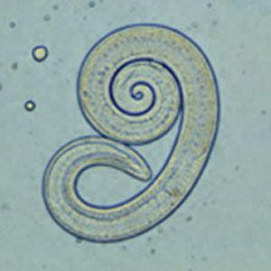 Paraziți dpdx și sănătate - Enterobius vermicularis cdc dpdx