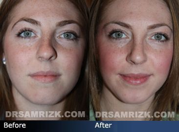 Crooked Nose Before And After Crooked Nose Nose Nose Job