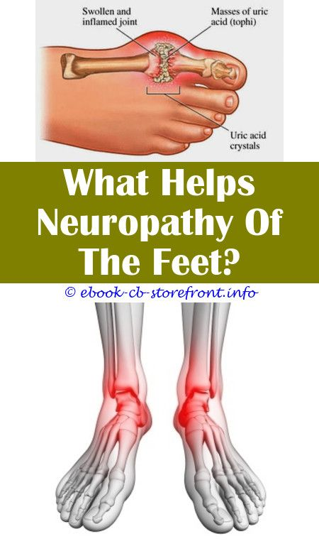 12+ Fearsome Neuropathy Pain Relief Carpal Tunnel Ideas