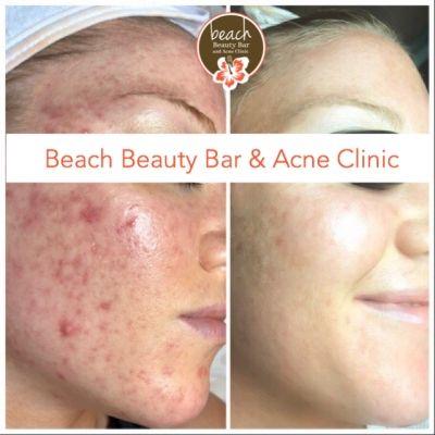 Acne Success Stories Beach Beauty Bar And Acne Clinic Acne Clinic Beach Beauty Beauty Bar
