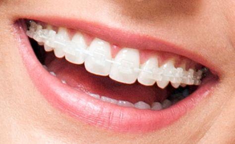 Aparelho Dental Porcelana Com Imagens Aparelho Dental