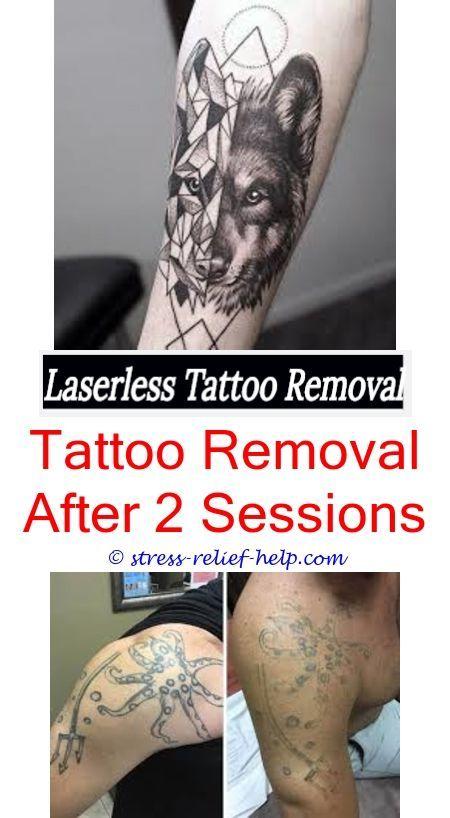 Laser Tattoo Laser Tattoo Tattoo Removal Cream Tattoo Removal Cost