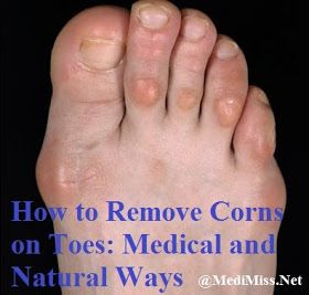 treatment of corns on top of toes