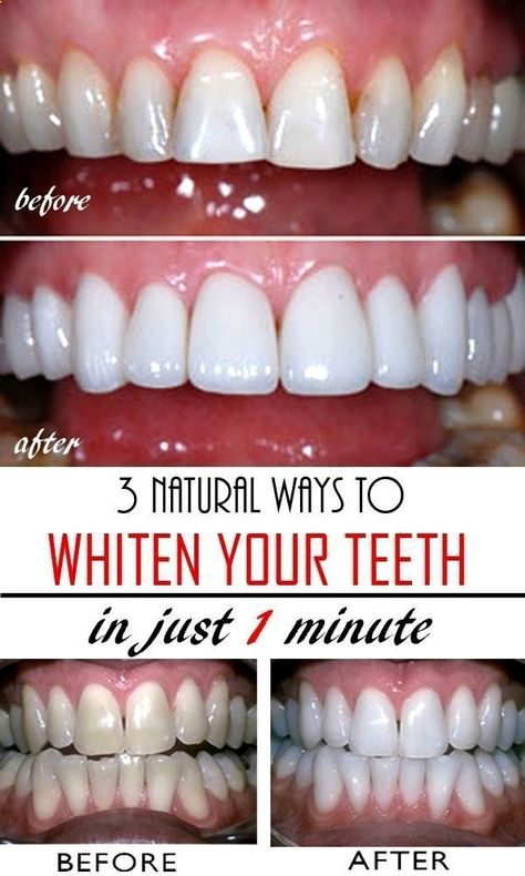 How exactly to Whiten Teeth In a natural way at Home LaserTeethWhiteningCosmeticDentistry #teeth #best #whitening #homemade #remedies #safe