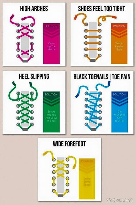 Ways to tie shoelaces to accommodate various foot problems