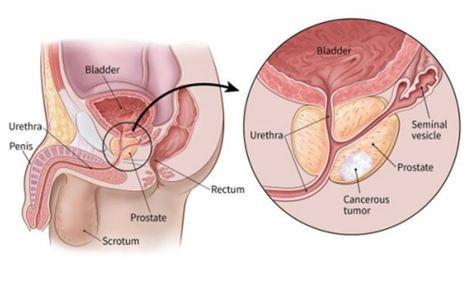 slăbește vulva)