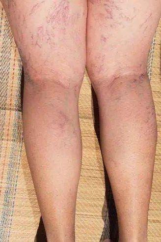 Cum să vindeci durerea din picioare - anuncio.ro