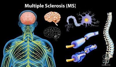 ما هو مرض التصلب المتعدد Ms التصلب المتعدد هو مرض مناعي ذاتي يؤثر على الجهاز العصبي المركزي لأسباب غير معروفة للطب Multiple Sclerosis Risk Factors Diagnosis