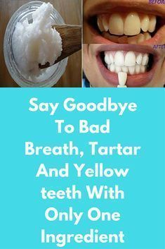 Say Goodbye To Bad Breath, Tartar And Yellow teeth With Only One Ingredient It is an ancient Ayurvedic dental technique which cleanses the body of toxins and supports oral and overall health. This method includes swishing a tablespoon of oil in the mouth on an empty stomach for 15-20 minutes. Check the video below: Subscribe to Glowpink   Oil pulling detoxifies the gums, strengthens and protects the teeth … #bodyskinwhiteningproducts