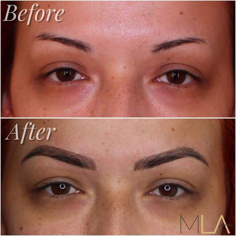 Throwback to Lindsey Ta giving @pinupdollashleymarie natural and full brows by microblading ✍🏼 See this Instagram photo by @microbladingla • 513 likes