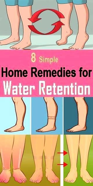 How To Get Rid Of Fluid Retention After Pregnancy