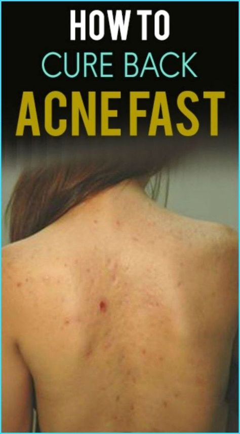 3 Best Remedies For Back Acne