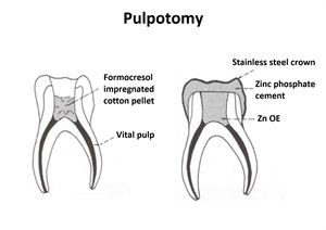 Pulpotomy Is An Endodontic Procedure Of Removing The Affected