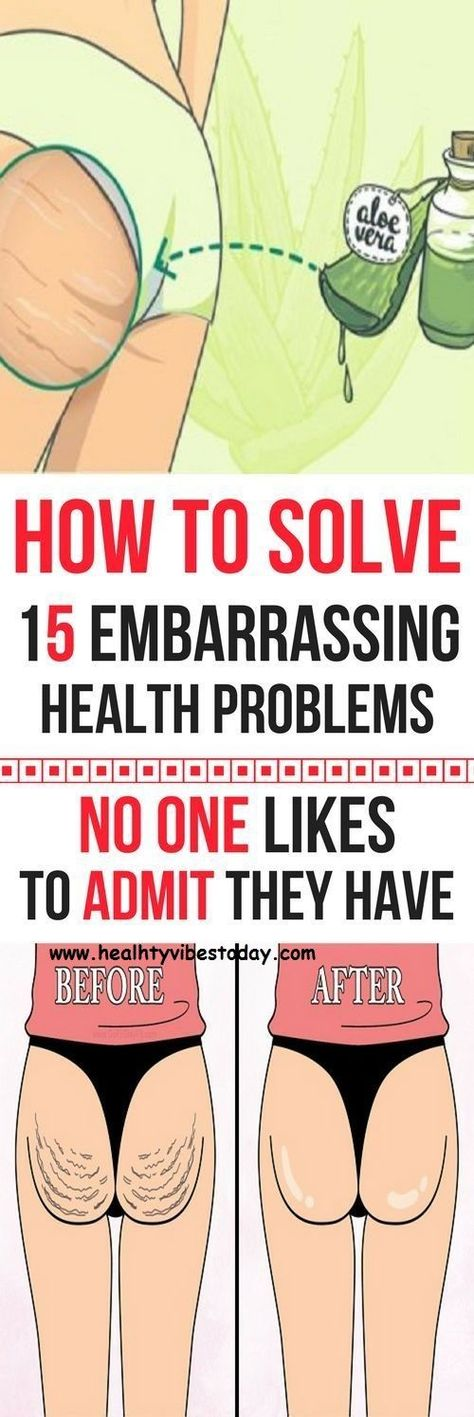 How to Solve 15 Embarrassing Health Problems No One Likes to Admit They Have
