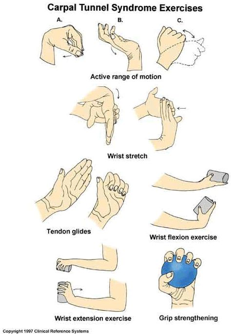 Carpal Tunnel Syndrome Exercises  just a good lil' reminder